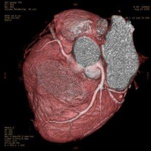jantung 8 Langkah Membuat Jantung Anda Lebih Sehat